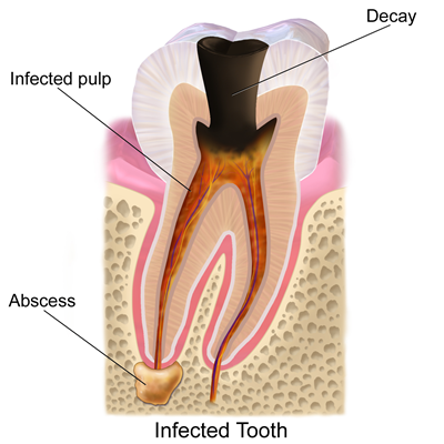 tooth decay options besides fillings